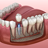 Dental Implants and Gum Disease: What You Need to Know