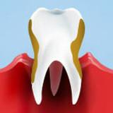 Gum Disease: Causes and Treatments