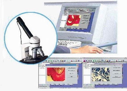 Digital Microscope Eyepiece