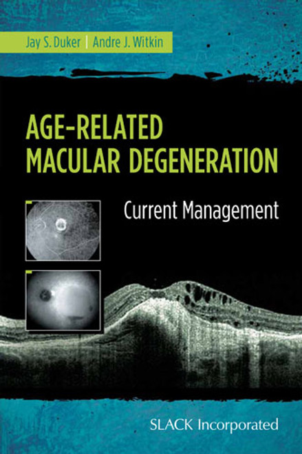 Age-Related Macular Degeneration: Current Management