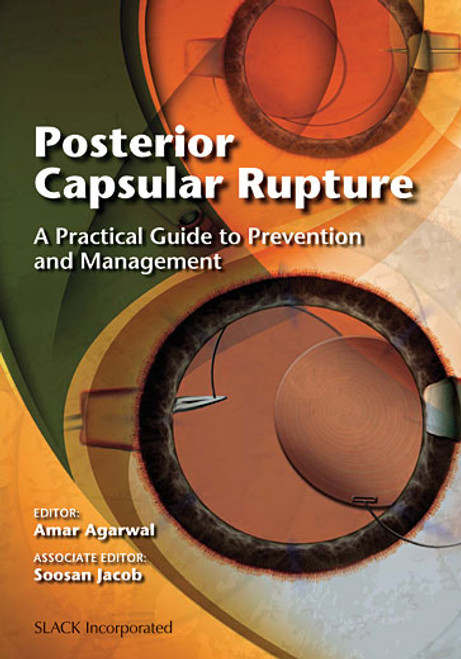 Posterior Capsular Rupture: A Practical Guide to Prevention and Management