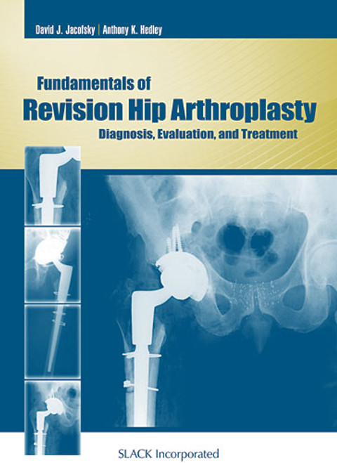 Fundamentals of Revision Hip Arthroplasty: Diagnosis, Evaluation, and Treatment