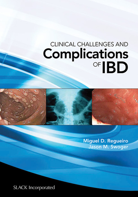 Clinical Challenges and Complications of IBD