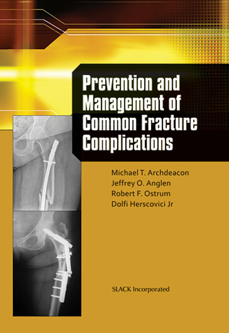 Prevention and Management of Common Fracture Complications