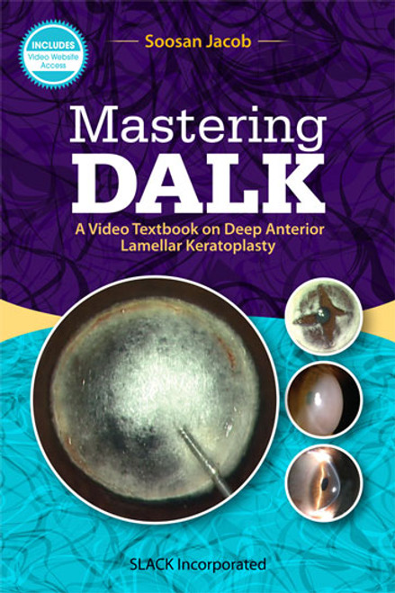 Mastering DALK: A Video Textbook on Deep Anterior Lamellar Keratoplasty