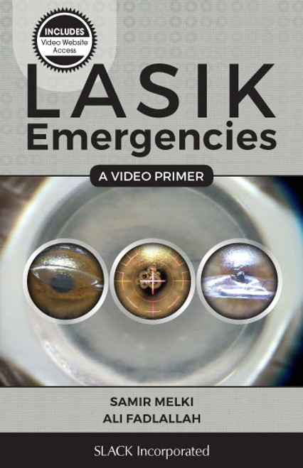 LASIK Emergencies: A Video Primer