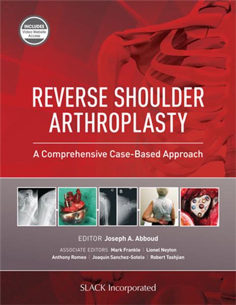 Reverse Shoulder Arthroplasty: A Comprehensive Case-Based Approach