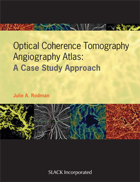 Optical Coherence Tomography Angiography Atlas: A Case Study Approach
