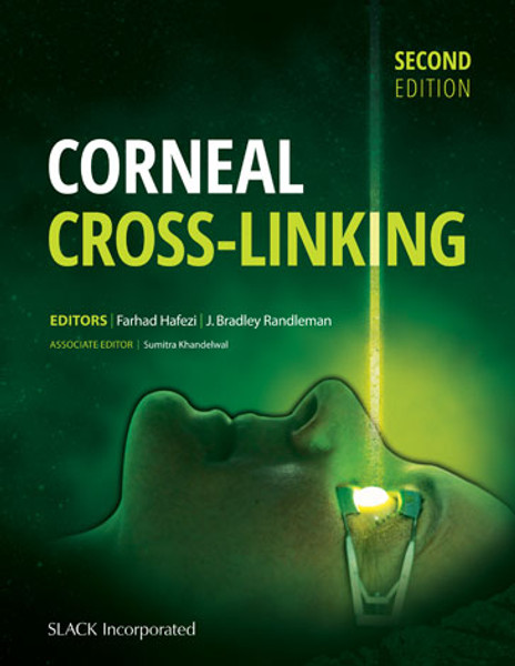 Corneal Cross-Linking, Second Edition