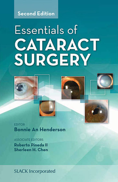 Essentials of Cataract Surgery, Second Edition