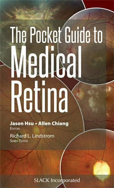 The Pocket Guide to Medical Retina