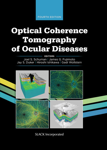 Optical Coherence Tomography of Ocular Diseases, Fourth Edition