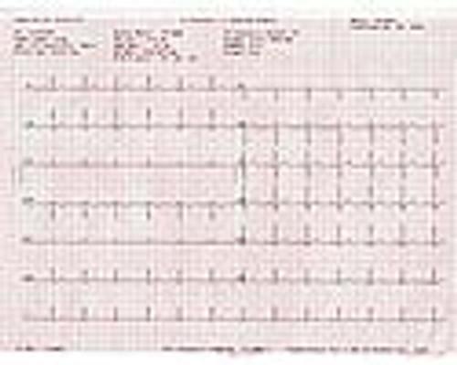 ECG Medi-Graph Paper for Bionet ECG