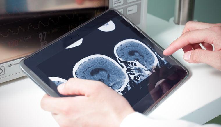 Sleep impacts brain health