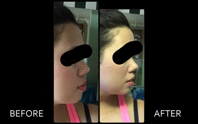 NoseSecret Before and After Photo