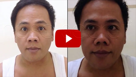 NoseSecret Video Image - Cezar