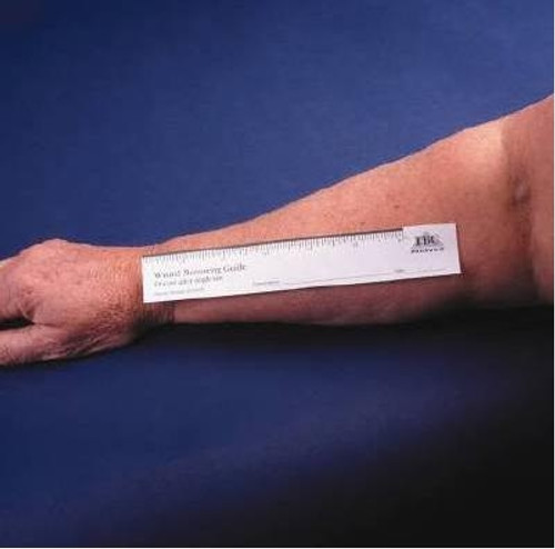 Wound Measuring Device 1