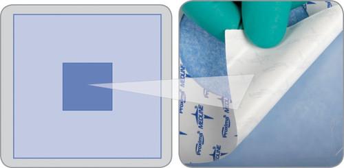 Invisishield Aperture Surgical Drape