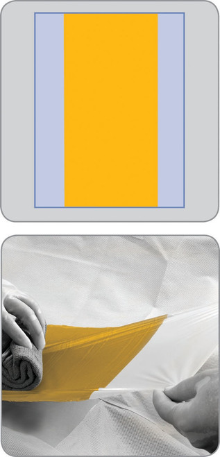 Acti-Gard Antimicrobial Incise Surgical Drape