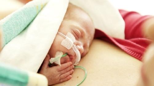 Neonatal Nasogastric Feeding Tube Medela PVC Sterile