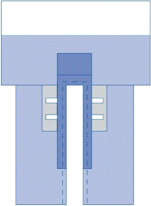 Sterile CV Split Surgical Drape w/Clear Anesthesia Pouch