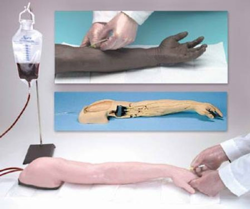 Advanced Venipuncture and Injection Arm, Life/form