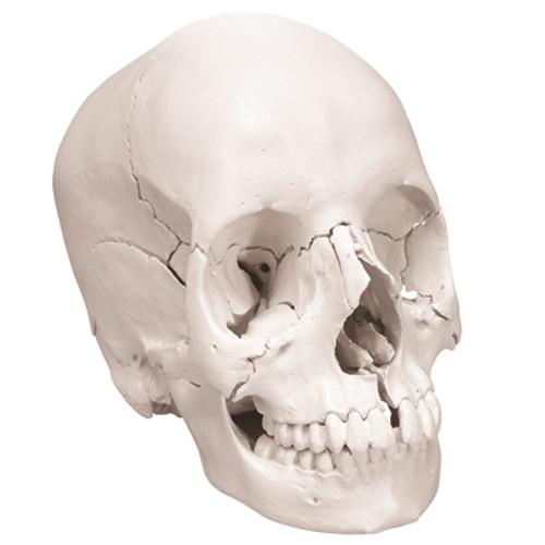 Anatomical Model: Anatomical Skull, Beauchene 22-Part