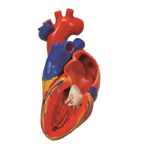 Anatomical Model: Heart with Bypass, 2-Part