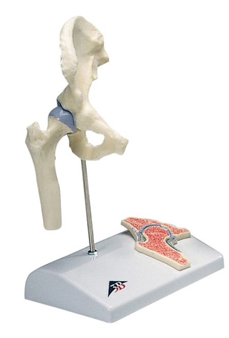 Anatomical Model: Mini Hip Joint w/Cross Section Of Bone On Base