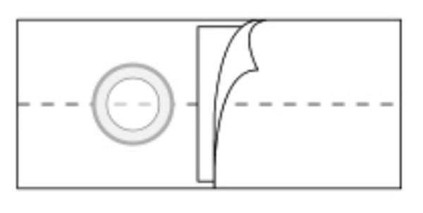 Peristomal Hernia Belt Nu-Form