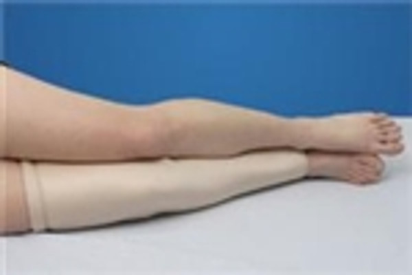 Alimed DermaSaver Protective Leg Tube