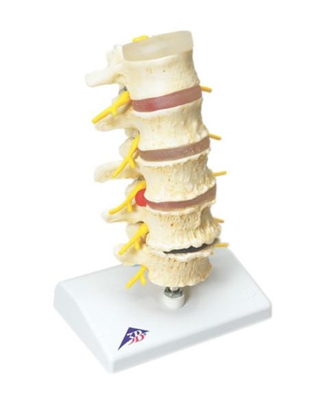 Anatomical Model: Vertebrae Degeneration, Stages Of Prolapsed Disc