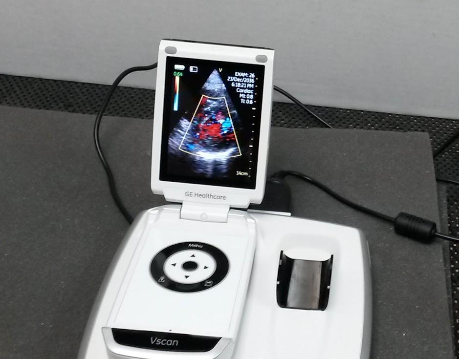 Used GE Vscan Hand Ultrasound - Single Probe