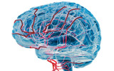 Prevention and Cure of Alzheimer's Disease, Post-Stroke Recovery And Dementia Management