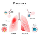 Possible natural remedies against COVID-19 and pneumonia