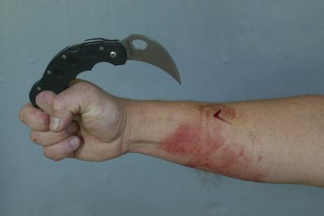 forearm-retraction-cut.jpg