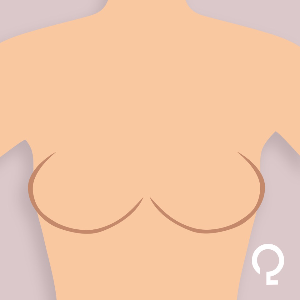 qlinn-oval-breast-image-2.jpeg
