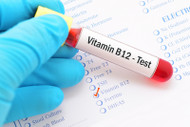 Vitamin B12 and Vitamin D3 Deficiencies and Your Teeth and Bones