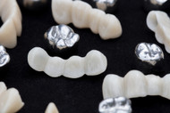 Got Crowns, Bridges, Fillings, Braces or Other Dental Work?