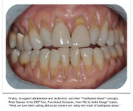 Abfraction Lesions May Be Toothpaste Abuse
