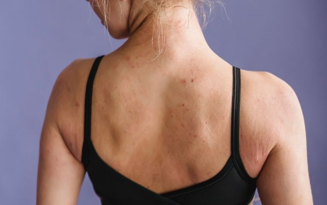 5 Tips to Consider When Buying Mastectomy Bras