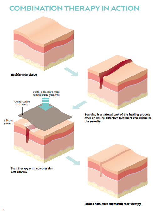 amoena-amocura-silicone-scar-anchor-image2.3.png