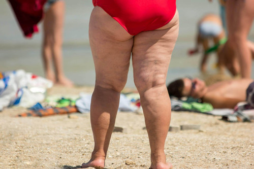 How to Stop Worrying about Chafing at the Beach