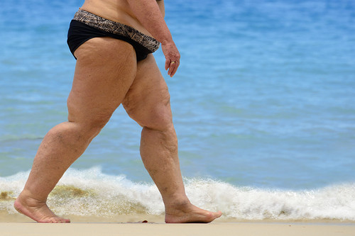 How to Prevent Chafing while at the Beach