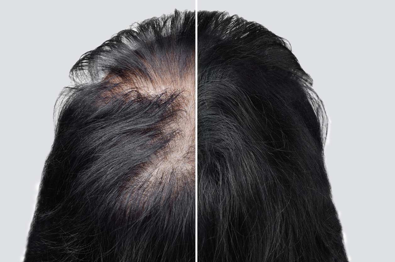 women-baldness-alopecia.-hair-after-using-cosmetic-powder-to-thicken-hair.-before-and-after.-1250330422-1258x836.jpeg