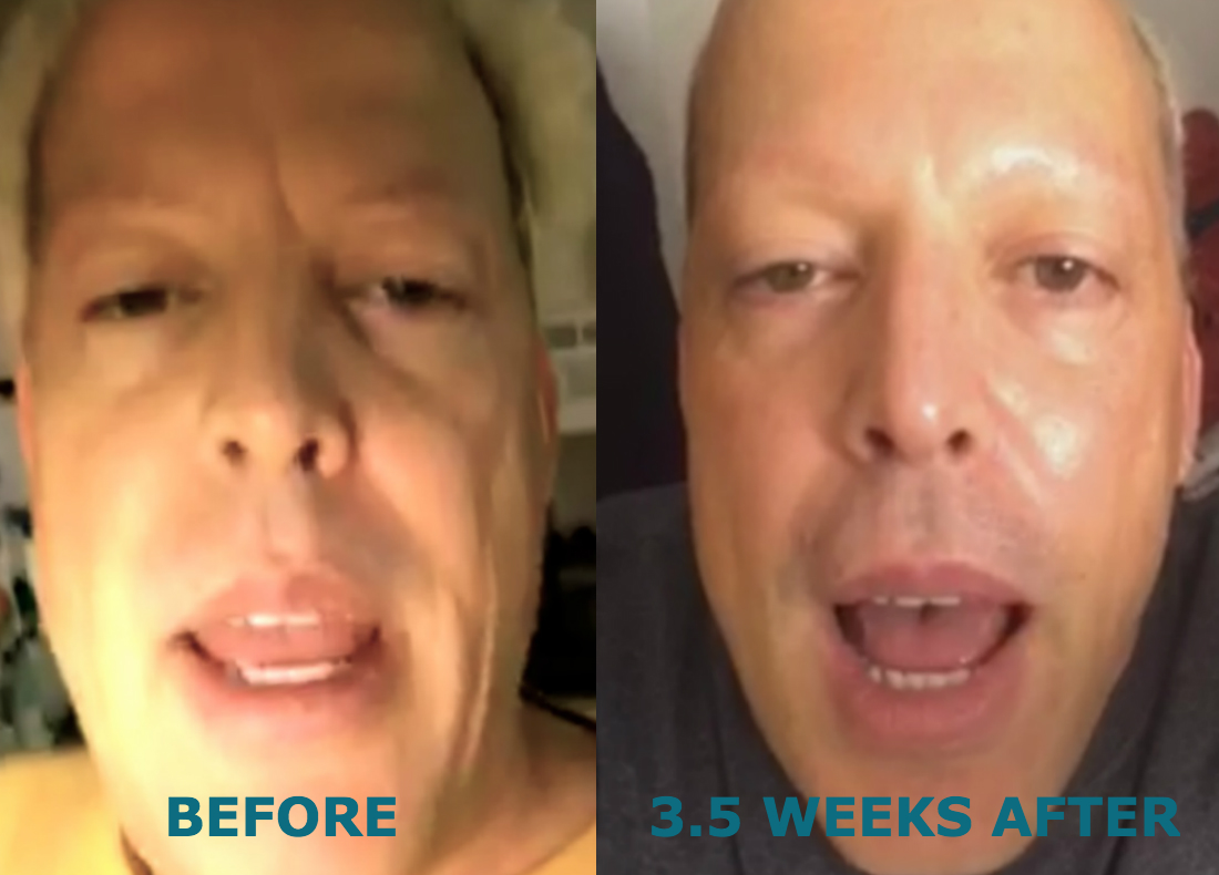 ha-before-after.jpg