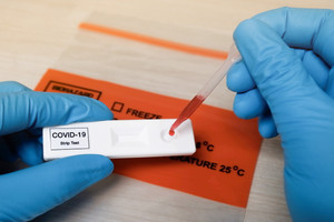Testing Service: On-Site COVID-19 Antibody Finger Prick Tests, Call to Order