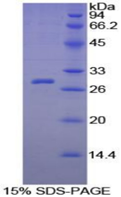 Guinea pig Recombinant C Reactive Protein (CRP)