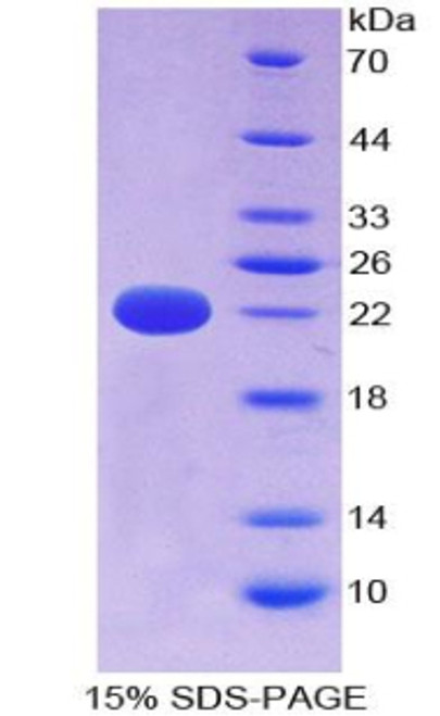 Human Recombinant Cylindromatosis (CYLD)