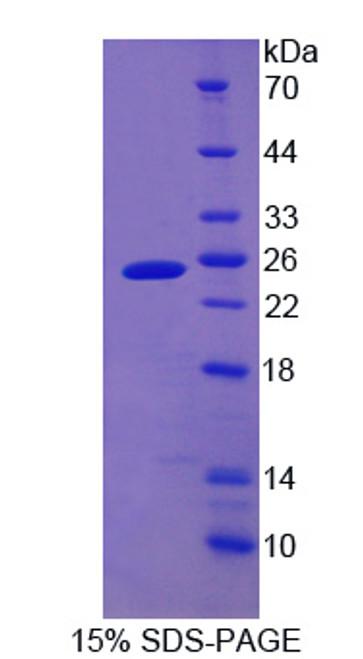 Human Recombinant Cytoglobin (CYGB)